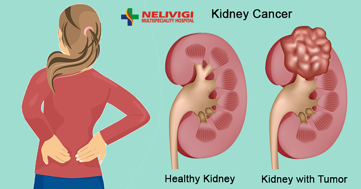 Treatment for RCC or kidney cancer | Renal Cell Cancer Treatment in Bangalore | Nelivigi Multispeciality