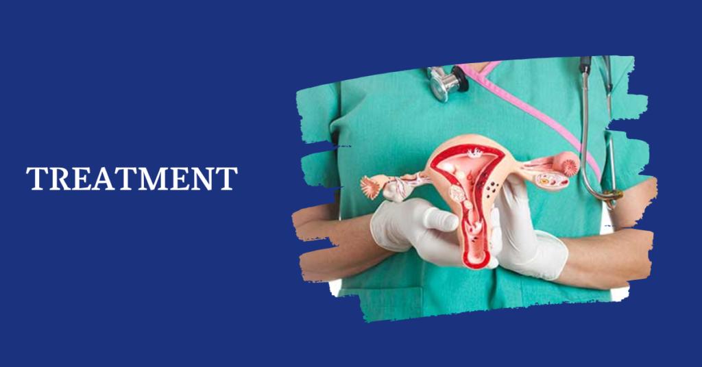 Cystocele Treatment - Best Urology Hospitals Bangalore - Nelivigi Multispeciality